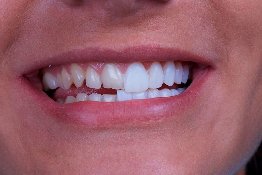 smile teeth veneer